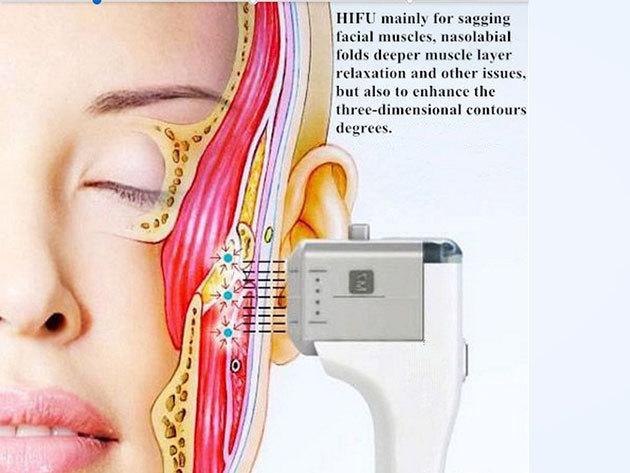 HIFU - Ultra Age arckezelés (mindkét oldalon) + szájkörnyék kezelés