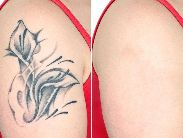 Lézeres tetoválás eltüntetés 5x5 cm-es területen / 1 alkalom