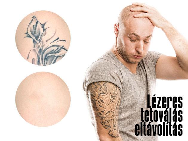 Lézeres tetoválás eltávolítás 5x5 cm-es területen (1 alkalom), a belvárosi Face&Body Kontúr szalonban