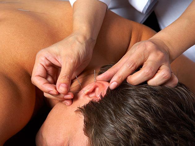Akupunktúra - Hagyományos, a kínai gyógyászaton alapuló füladdiktologiás kezelés / XI. kerület