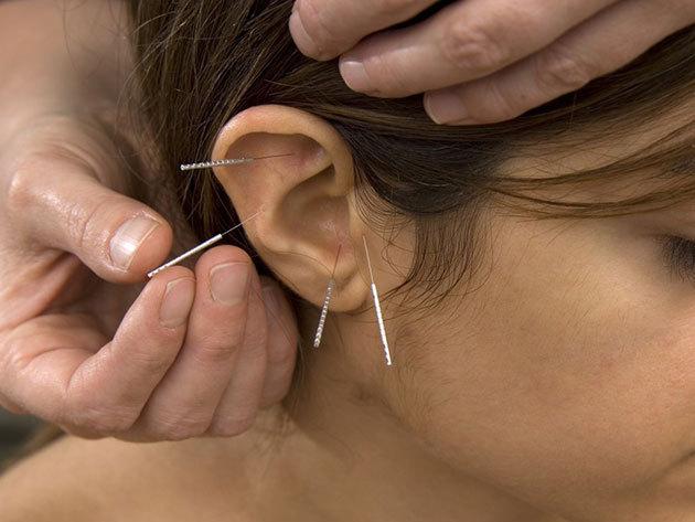 5 alkalom / Akupunktúra - Hagyományos, a kínai gyógyászaton alapuló füladdiktologiás kezelés