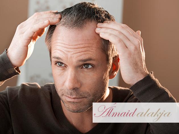 Hair Grow System Lézeres Hajkezelés a hajhullás megelőzésért és a fejbőr egészségéért (3 alkalom), a belvárosban