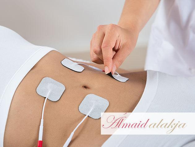 Elektromos izomstimuláció (EMS) 3+1 vagy 10+1 alkalmas alakformáló, zsírégető bérlet / Álmaid Alakja, VI. ker.