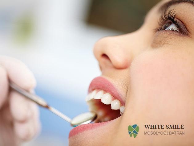 Fogtömés (1 db) és állapotfelmérés a White Smile Fogászaton (VI. kerület) - az egészséges fogakért