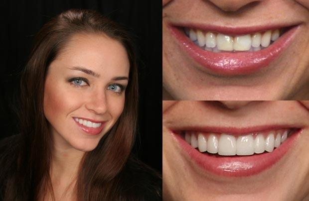 Peroxidmentes fogfehérítés + fogkő eltávolítás + polírozás + rákszűrés + dentálhigiéniai kezelés kedvező áron