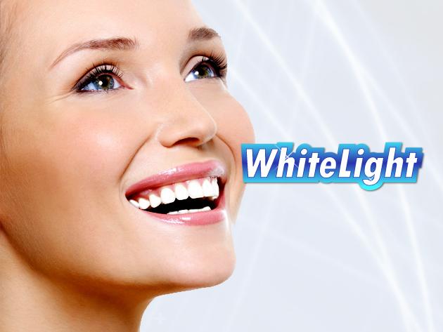 A WhiteLight fogfehérítő szettel akár 30 perc alatt fehérebb lehet a fogsorod, egyszerűen.