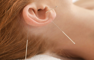 1200-ear-acupuncture_middle