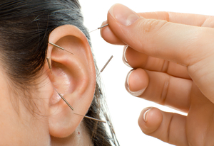 Ear_acupuncture_middle