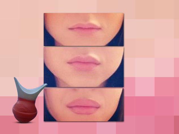 Fuller Lips- ajaknövelő