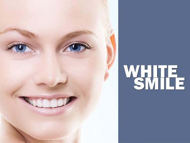 White_smile_ajanlat_01_large