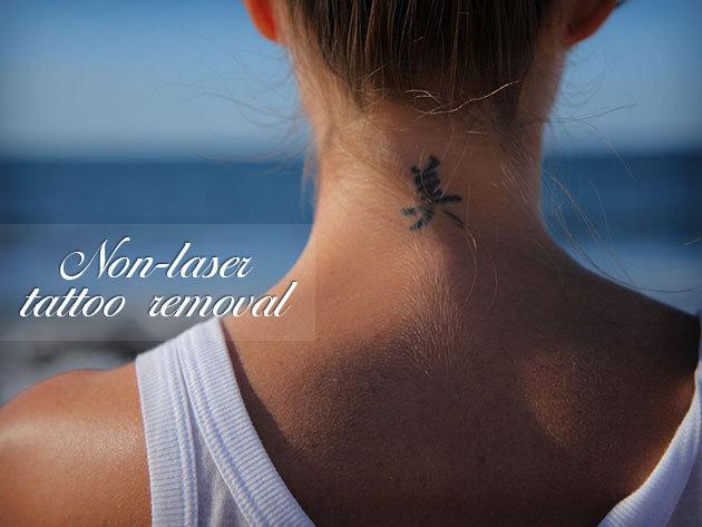Smink- és test tetoválás végleges eltávolítása kémiai módszerrel!
