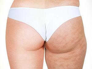 CryoLipolysis: 3 alkalmas zsírfagyasztás a külső-, vagy belsőcombokon
