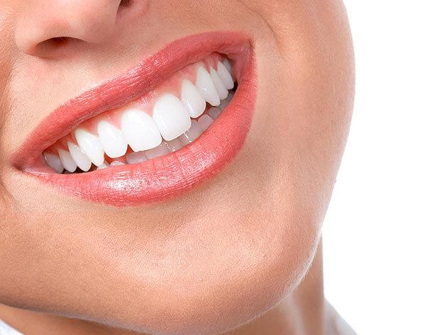 Led lámpás fogfehérítés a csábító, gyönyörű fogakért!