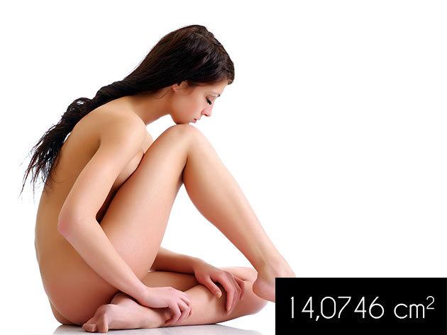 Orvosi lézeres hajszálér eltávolítás a Perillisz Stúdióban 14,0746 cm2 nagyságú területen